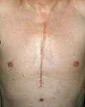 Managing the Open Heart Surgery Scar | Rehabilitate Your Heart