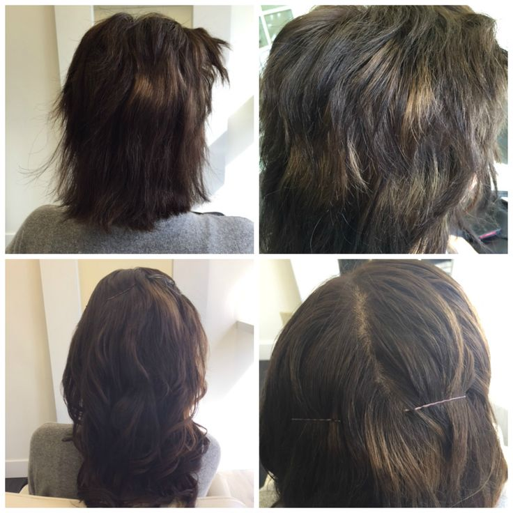 Hair extensions for severely chemically damaged hair. Three rows of undetectable Remy hair extensions to fill in necessary volume and length. Now Casey can have an easier time while her natural hair grows in!   #chemicallydamagedhairvancouver #chemicallydamagedhair #hairextensionsfordamagedhair #hairextensionsfordamagedhairvancouver #remyhairextensions #wavyhairextensions #pacifichairextensionsvancouver #pacifichair