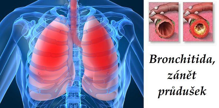 zanet prudusek bronchitida byliny bylinky babske rady caje obklady