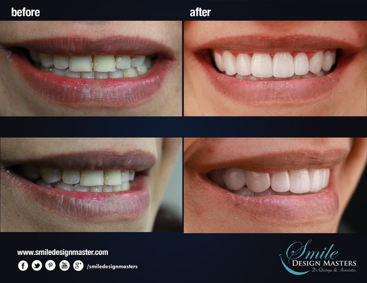 New transformation of smile - Composite Resin #Veneers. FREE DIGITAL SMILE DESIGN. check out www.smiledesignmasters.com