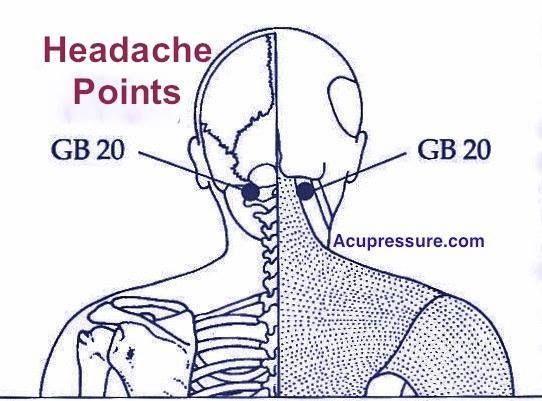 Base Skull Tension Headache