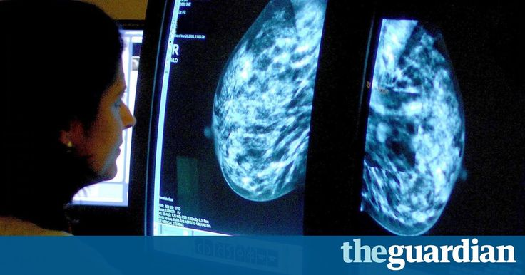 #Therapy #NHS Combined HRT nearly triples risk of breast cancer, study finds  Women who rely on the most commonly used form of hormone replacement therapy are roughly three times more likely to develop breast cancer than those who do not use it, according to a study whose results suggest the risk of illness has been previously ... https://www.theguardian.com/society/2016/aug/23/combined-hrt-increases-breast-cancer-risk-nearly-300
