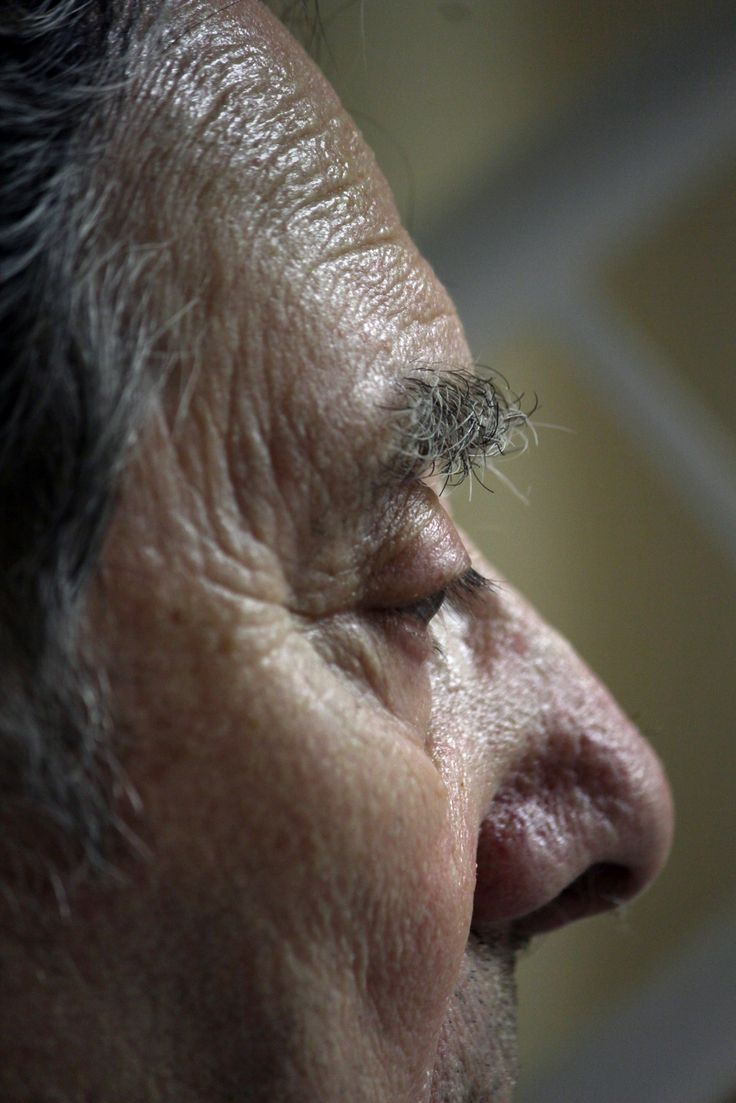 Could a Nasal Pray Help Solve Alzheimer's?  In a new study from Wake Forest Baptist Medical Center in Winston-Salem, North Carolina, researchers have found promising data indicating that a nasal spray treatment may help those suffering from Alzheimer's. The spray, which involves providing a dose of man-made insulin through the nasal passage, could help improve memory and overall mental state. Read more... View Article