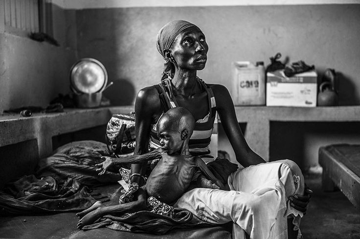 Gore, Tchad. 1er juin 2014. Chad/CAR refugees/ Gore hospital/Guidi Oumarou, 19, seats on a bed at Gore hospital where her 2 year-old son, Mama Sale, is being treated for acute malnutrition. They arrived in Chad four months ago after two weeks walking in the bush to escape violence in CAR. She was at the hospital in CAR when the rebels circled the hospital and she had to flee with her sick boy. picture from Sony pix awards 2015