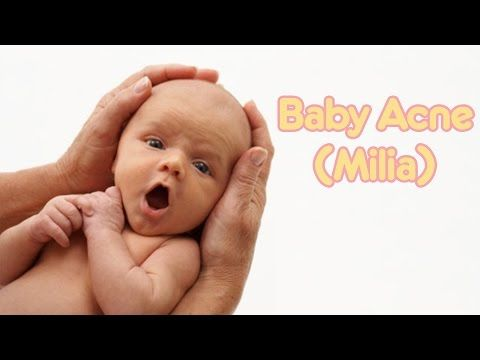 BABY ACNE (MILIA) | Baby Care with Jenni June -  CLICK HERE for the Acne No More program #acne #acnetreatment #acnetips #acnecare Baby acne, also known as milia, is usually caused by hormones, not keeping baby's face clean, build up of oil in the pores, or cradle cap.  It's very normal and if left untreated, it will go... - #Acne