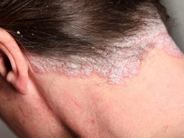 Este é um dos melhores remédios caseiros para eczema, psoríase e outros…