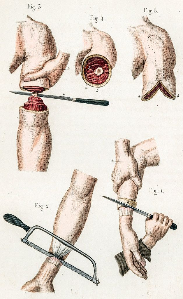 Illustration of arm amputations. Civil War era. 'Broken Bodies, Suffering Spirits' at the Mütter Museum - NYTimes.com