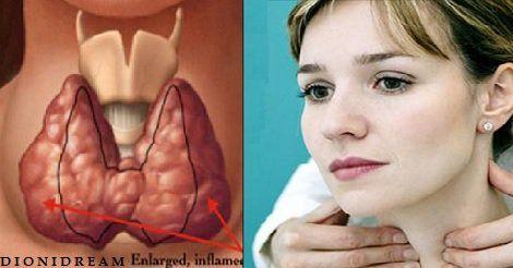 I 3 Passi Fondamentali per curare la tiroide naturalmente