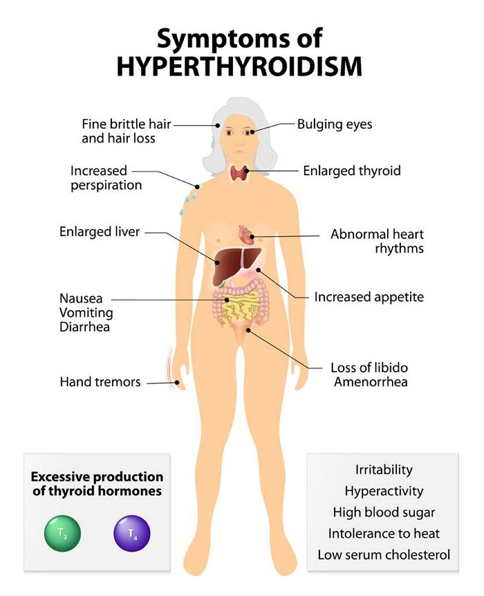 Thyroid Gland Functions Location Hormones With Overactive