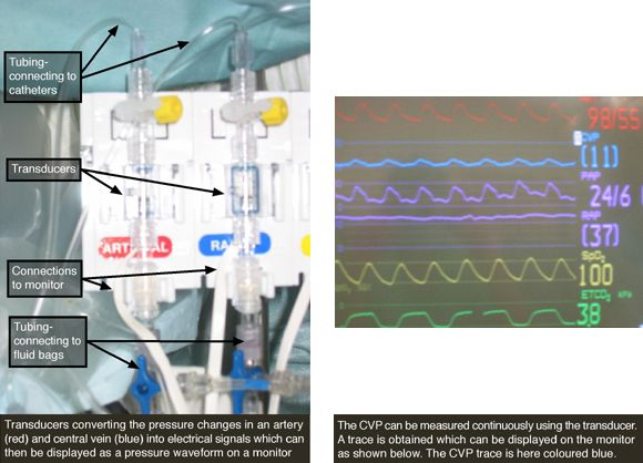 Measuring Central Venous Pressure; #Anaesthesiology #Medical #cardiac