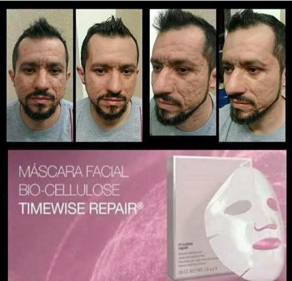 Check out this amazing Bio-Cellulose Mask results...... Face lift in a box from Mary Kay