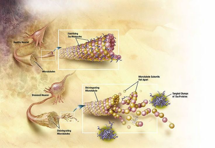 Study Shows Direct Relationship Between Alzheimer's Tau Protein and Cholesterol
