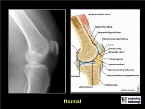 From 'Learning Radiology' - a presentation about bony knee trauma.