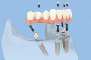 All-on-4, an innovative and fully esthetic prosthetic solution for severe bone loss and gum recession