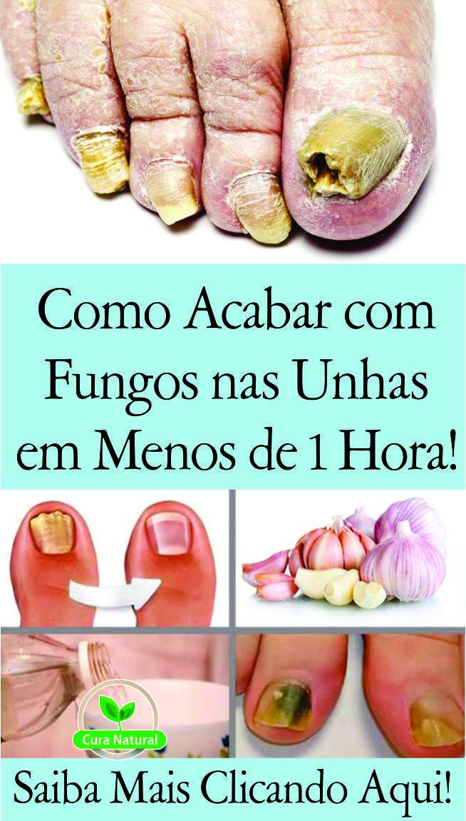 Pin De Maria Vieira Em Sabao Caseiro Em 2020 Fungos Nas Unhas