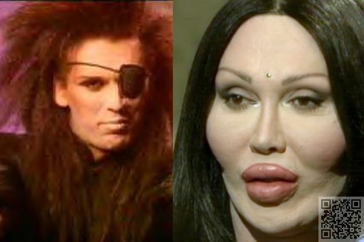 15 pete burns these celebs just wanted a little