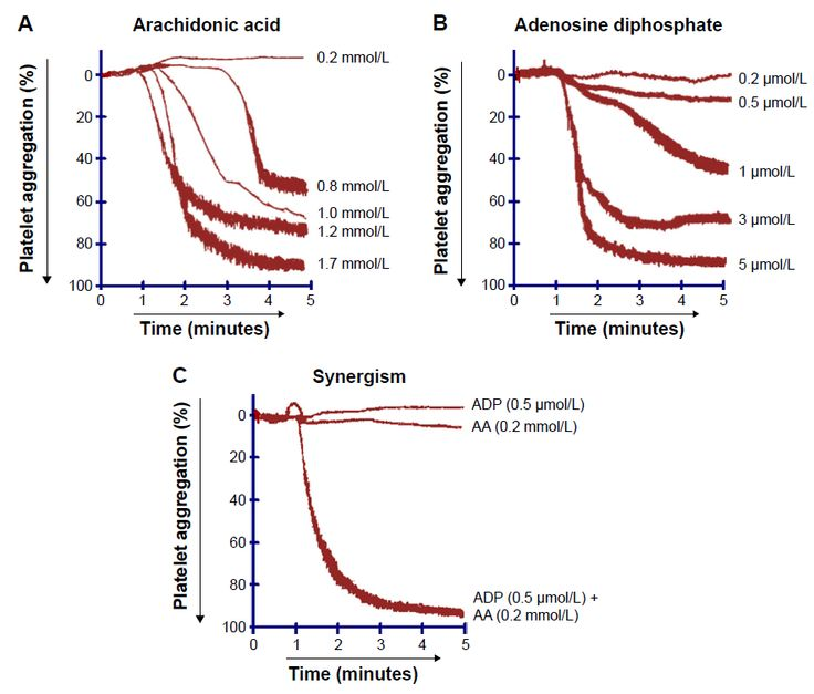 Figure 6 Tracings from representative experiments showing (A) concentration-dependent effect of AA , (B) concentration-dependent effect of ADP, (C) synergistic effect of AA (0.2 mmol/L) and ADP (0.5 μmol/L) on human platelet aggregation. Control = (ADP + AA ), n=5.