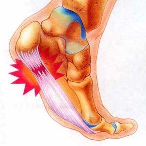 Common Psoriatic Arthritis Symptoms