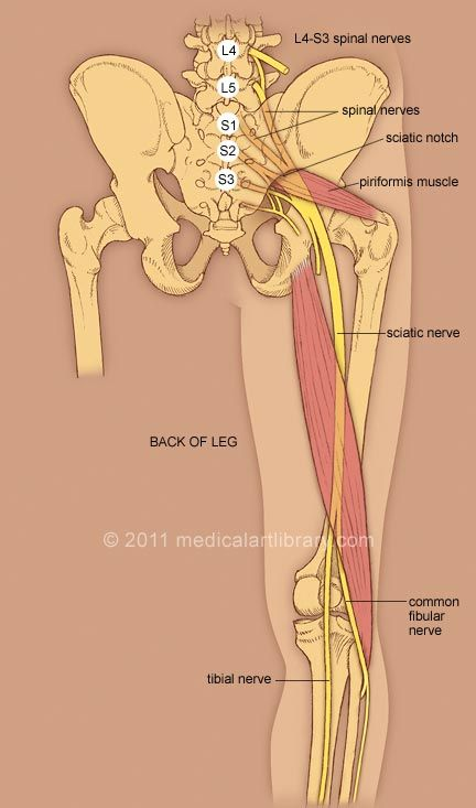 Illustration of sciatic nerve shows the L4-S3 spinal nerves, the sciatic notch, piriformis muscle, common fibular and tibial nerves. Description of sciatica and common causes of sciatica.