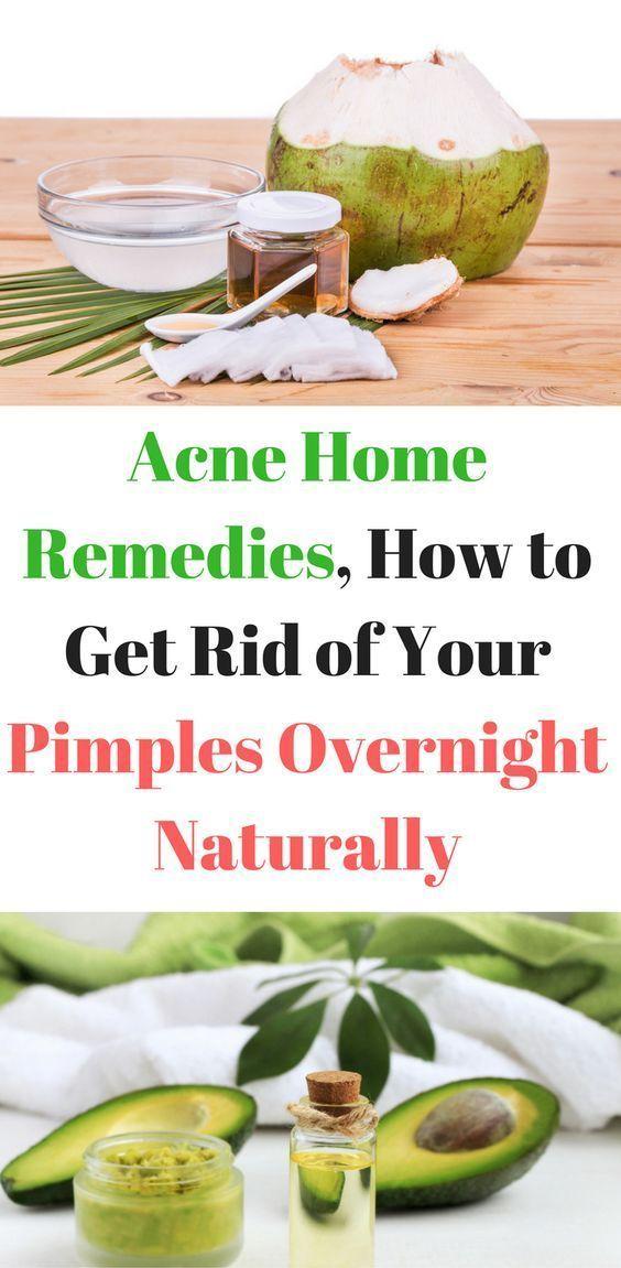 Akne Home Remedies, Wie Sie Ihre Pickel über Nacht loswerden #SkinCareForBlackheads #HowToGetRidOfAcneOvernight