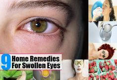 Remedies For Swollen Eyes