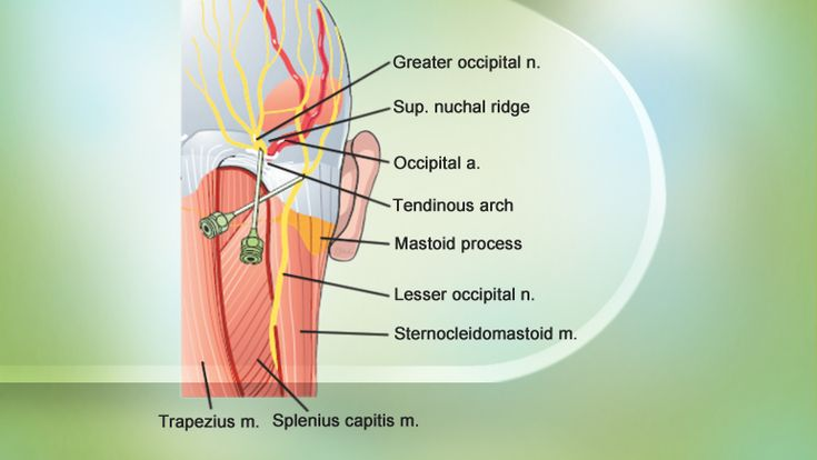 Greater Occipital Nerve Injection Occipital nerve block is