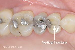 Are you suffering from Cracked Tooth Syndrome? Visit Yarra Dental, we offer you the best dental treatments.