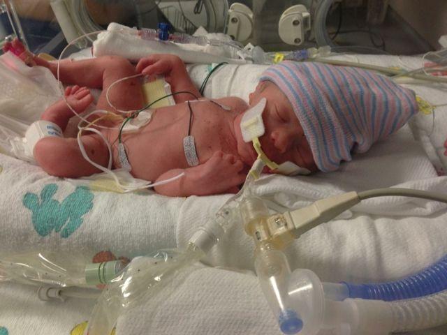 For Prematurity Awareness month, meet Jaxon! My 27 week ...
