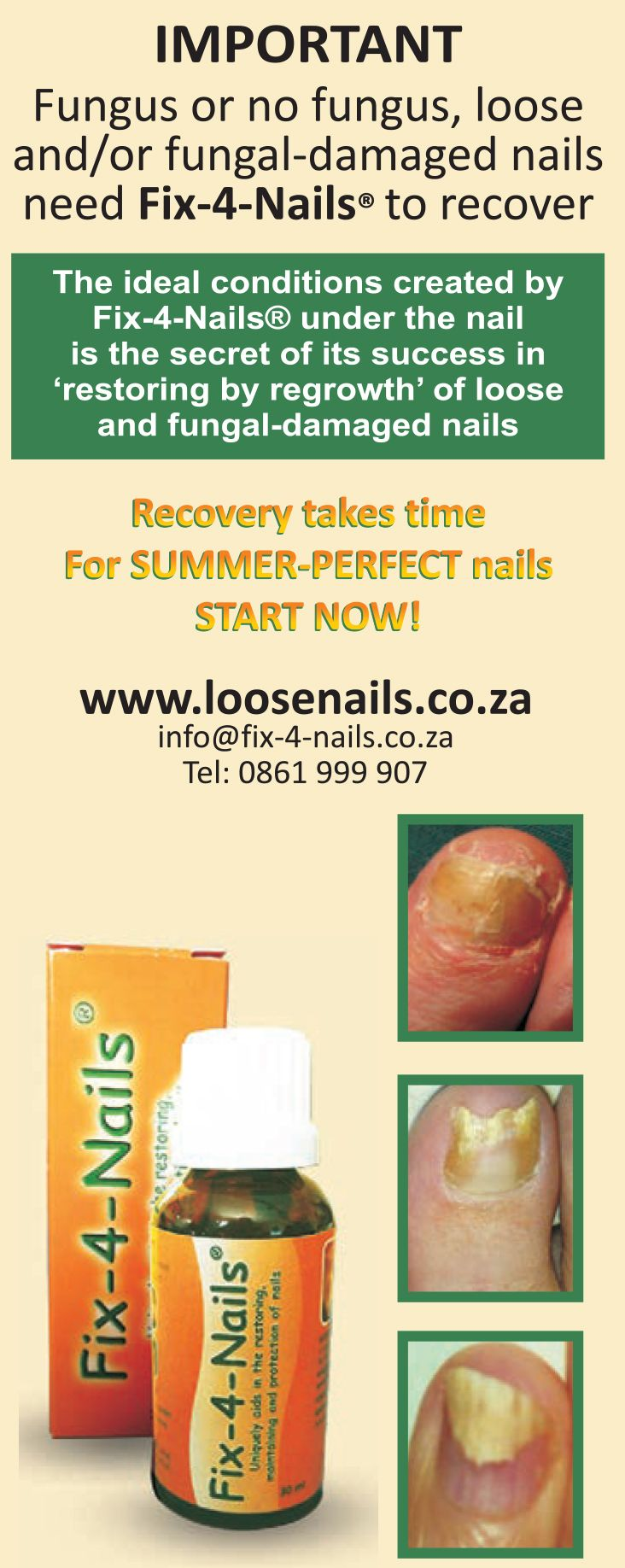 "Fix-4-Nails  The ideal conditions created by Fix-4-Nails under the nail is the secret for success in ""restoring by regrowth"" of loose and fungal-damaged nails.  Recovery takes time for Summer-perfect nails, START NOW! www.loosenails.co.za"