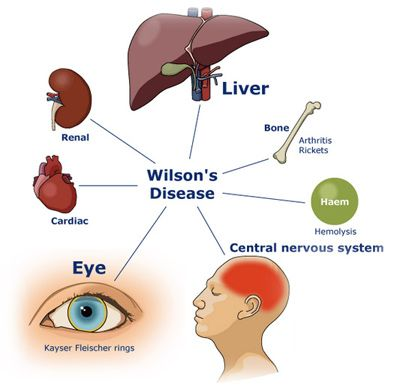 Wilson's Disease - is an inherited disorder that causes too much copper to accumulate in your liver, brain and other vital organs. Another term for Wilson's disease is hepatolenticular degeneration...