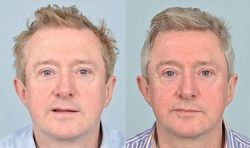 Hair is the most important part of our beauty.  It can be embarrassing to suddenly start going bald. Recently, hair transplants have become much cheaper. Know more about hair replacement cost visit here http://hairreplacementcost.me #HairReplacementCost