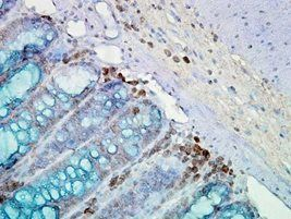 IHC staining of inflammatory cells and epithelia mucosa in mouse colon tissues.