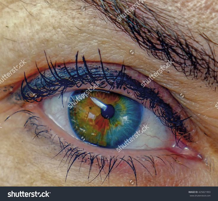 Eye Close-Up. Iris Heterochromia, Two-Color Iris. Caucasian. Stock Photo 425821993 : Shutterstock