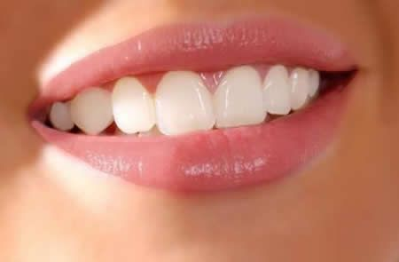 Teeth Whitening By Natural Baking Soda