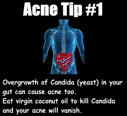 Candida in your gut can cause acne too. Eat virgin coconut oil to fight the yeast and clear your acne.