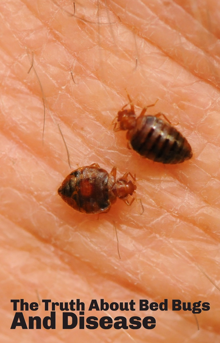 Can You Get Sick If Bed Bugs Bite You