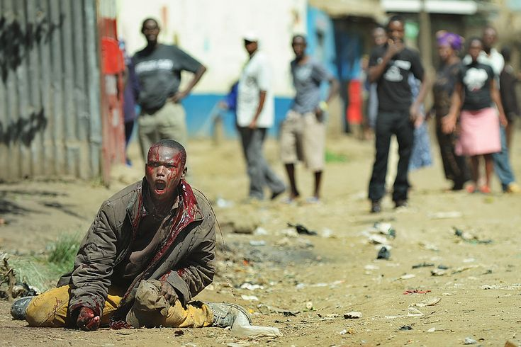 IN PAIN: A man was attacked with machetes in the Eastleigh suburb of Nairobi, Kenya, Monday. Clashes broke out a day after a bomb exploded on a minibus, killing at least nine people in Eastleigh, where many Somalis live. (Tony Karumba/Agence France-Presse/Getty Images)