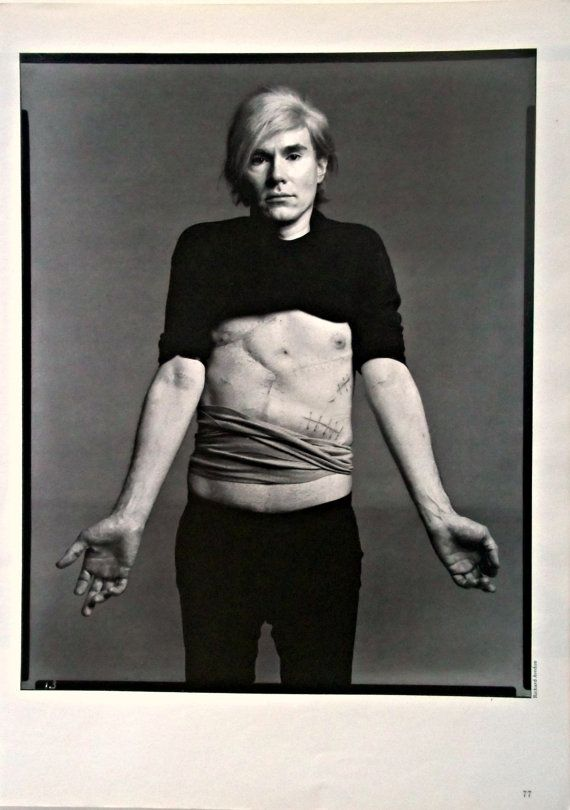 Andy Warhol by Richard Avedon 1987.  Here Warhol shows off the scars from when he was shot in 1968; six organs were pierced by bullets.  The fabric pushed down around his waist is a surgical corset, which he had to wear the rest of his life.  The woman who shot him only served three years.