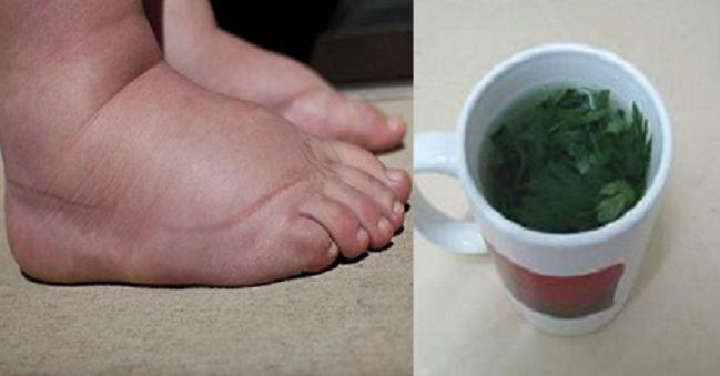 Je množstvo príčin, ktoré spôsobujú opuchnuté nohy, napríklad hormonálne poruchy, horúčavy, zlyhávanie obličiek, tehotenstvo, problémy s cievami a podobne. Alternatívna medicína pozná množstvo spôsobov,ako bojovať s opuchnutými nohami. Najúčinnejším spomedzi nich je pertržlen, pretože dokáže eliminovať z tela nadbytočnú vodu. PRÍRODNÉDIURETIKUM Na prípravu petržlenového čaju