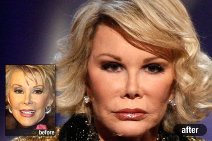 17 Best Images About Plastic Surgery Nightmares On