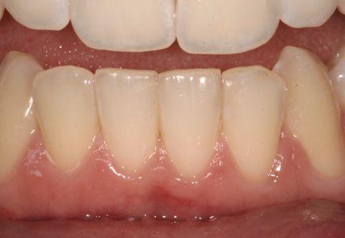 Best of Melbourne | United Smiles - Dentist Mernda, Toorak