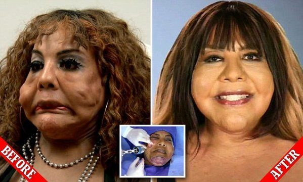 Transgender woman who had CEMENT and tire sealant injected into her face to try and look more feminine finally has the hideous lumps removed after more than a decade