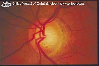 rund um's Auge: Infos zu Augenkrankheiten - Glaukom oder Grüner Star