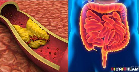Fino a qualche anno fa si credeva che la causa delle malattie cardiache fosse il colesterolo alto ma questo è stato completamente smentito dalla scoperta che la reale causa è l'infiammazione della parete arteriosa.
