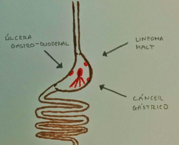 Lo que te puede provocar la bacteria Helicobacter pylori