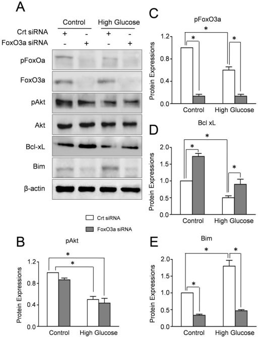 FOXO3a affects the expressions of Bim and Bcl-xL in CMECs under high glucose.A: Western blot results of Akt, pAkt, FoxO3a, pFoxO3a, Bim and Bcl-xL in CMECs incubated with FoxO3a siRNA or control siRNA (Crt siRNA) for 24h. The semiquantitative analysis of pAkt (B), pFoxO3a (C), Bim (D) and Bcl-xL (E). The protein expression in CMECs treated with control siRNA (Crt siRNA) under normal condition was set as 100%. (n=5, *p<0.05).