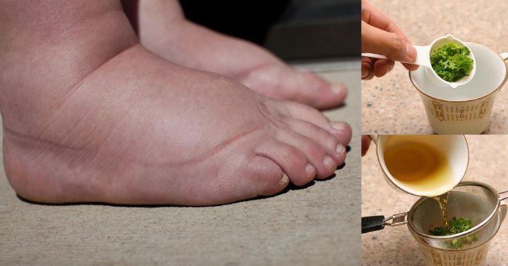 К вечеру ноги становятся тяжелыми и опухшими? Эти простые рекомендации и рецепт чая помогут навсегда забыть об отеках и плохом кровообращении!