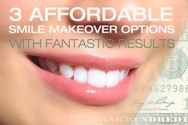 3 Affordable Smile Makeover Options with Fantastic Results - http://www.dmsdmd.com/affordable-smile-makeover/
