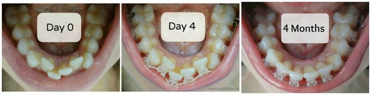 before after photos - 4 months Radiance Plus Clear Sapphire Braces by American Orthodontics