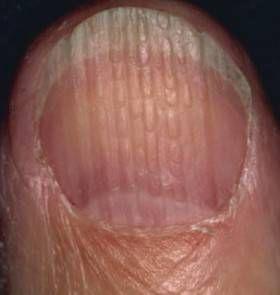 Voici ce que les anomalies des ongles disent au sujet de votre santé Saviez-vous que vos ongles peuvent fournir des indices sur votre état de santé général?